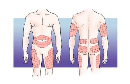 Areas inyección